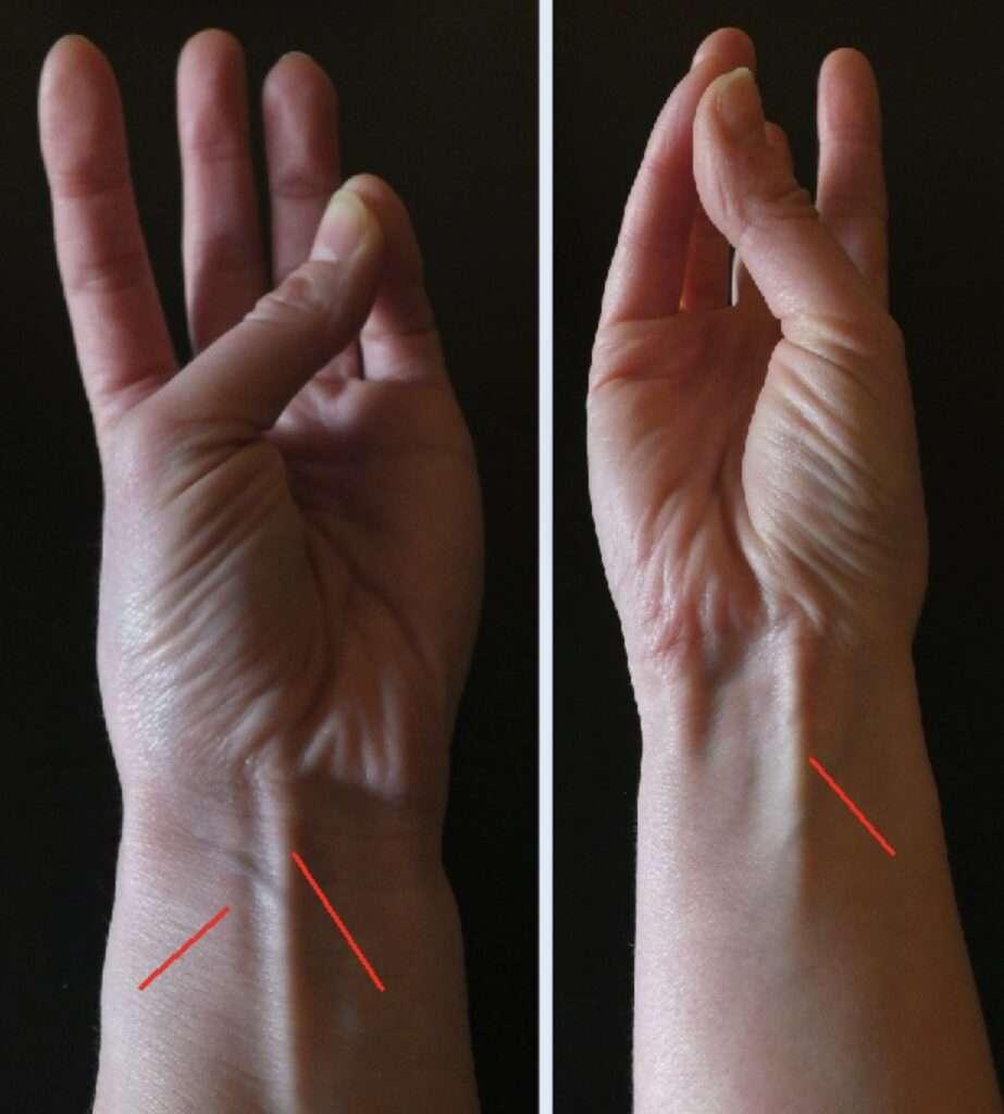 múscul palmar del braç prueba evolución